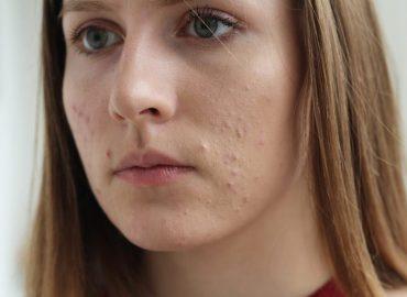 Acne e visita dermatologica