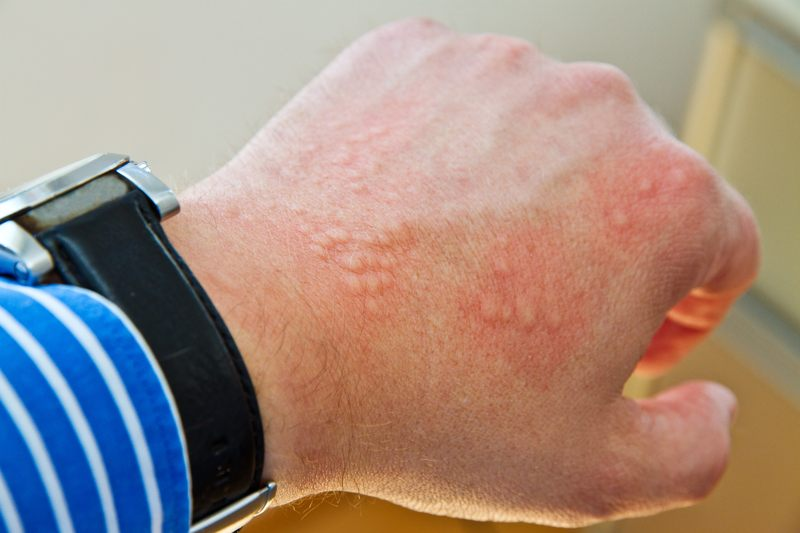 Dermatite da contatto: le cause più comuni