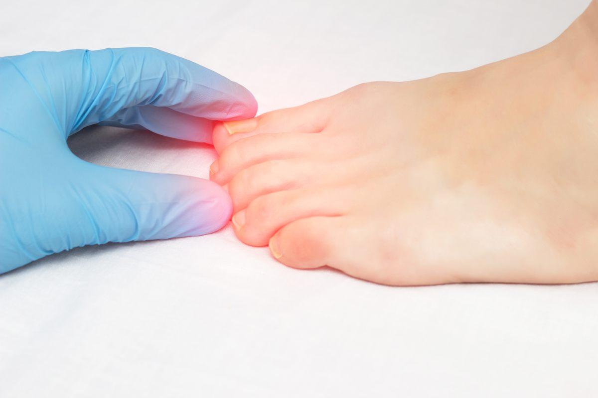Onicomicosi: perché rivolgersi al dermatologo