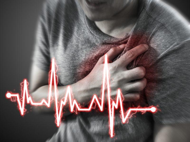 Come riconoscere un infarto e cosa fare