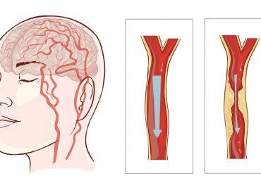 I consigli del cardiologo per prevenire un ictus cerebrale