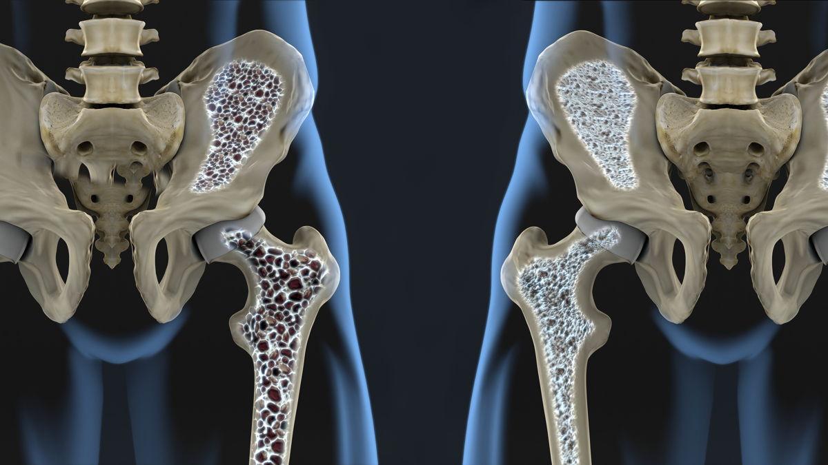 Tutto quello che devi sapere sull'osteoporosi