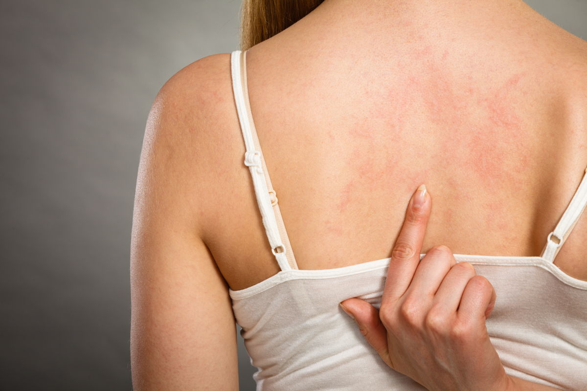 Le cause dell'orticaria e come si tratta