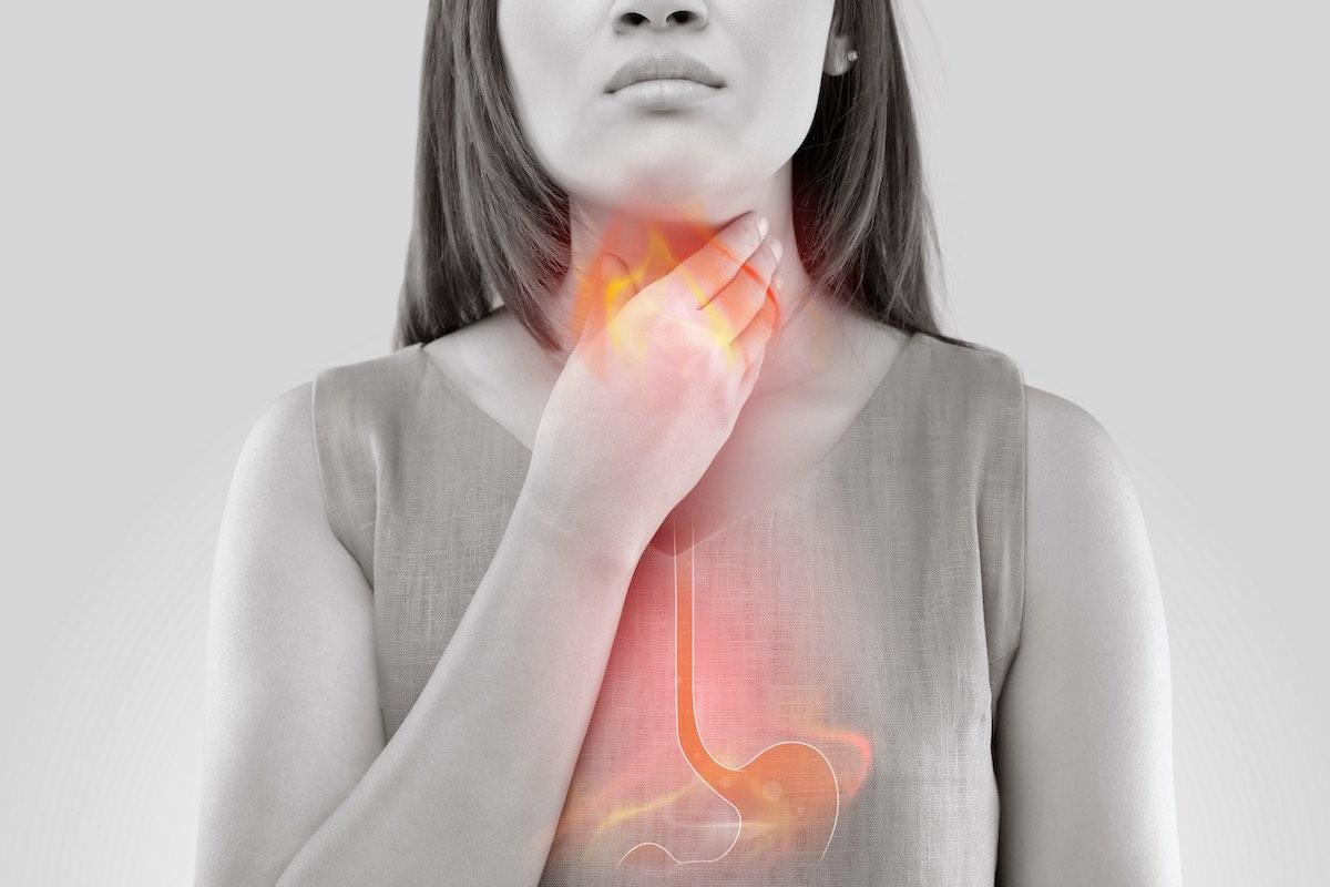 Reflusso gastroesofageo: i consigli dello specialista