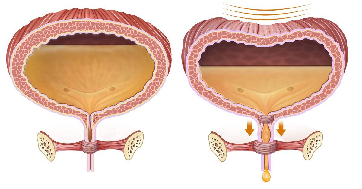Ritenzione urinaria: cos'è e quando si verifica