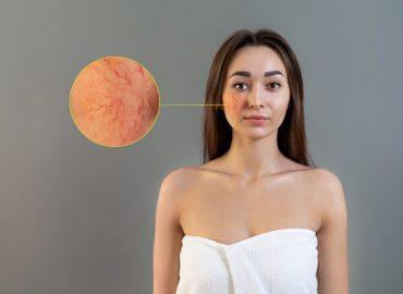 Malattie della pelle: cos'è la rosacea?